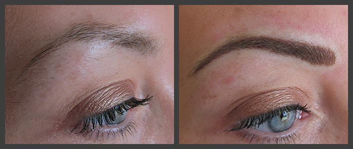 Permanent Cosmetic Eyebrows